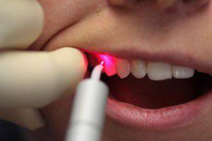 Преимущества лазерной хирургии