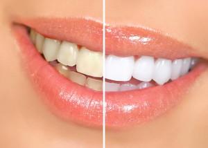 Ряд преимуществ лазерного отбеливания зубов