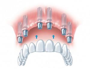 Имплантация зубов при адентии