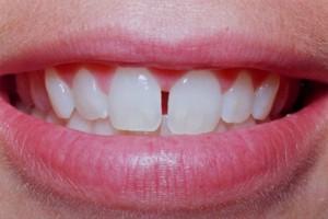 Диастема между передними зубами. Ортодонтическая помощь