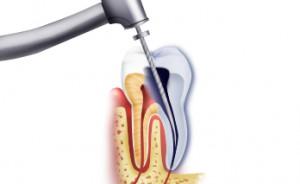 Эндодонтия - лечение каналов