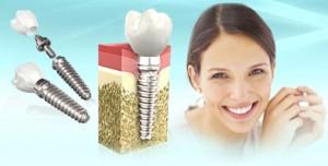 Имплантация зубов - это самый нелегкий выбор