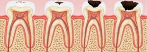Как предотвратить кариес зубов?