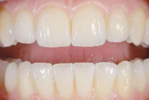 Оксид циркония для протезирования зубов