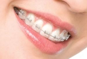 Ортодонтическое лечение зубов
