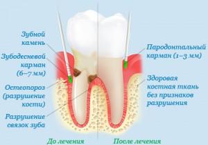 Пародонтит: причины, лечение и симптомы
