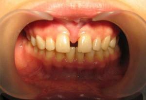 Пластика уздечки верхней губы с помощью лазера