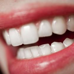 Пломба зуба