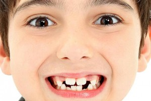 Рост коренных зубов у детей
