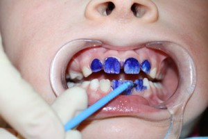 Что такое серебрение зубов и что делать, если зубы чернеют?