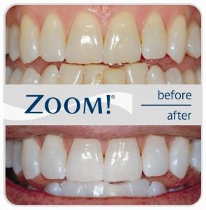 Отбеливание зубов Zoom. Уже проверено!